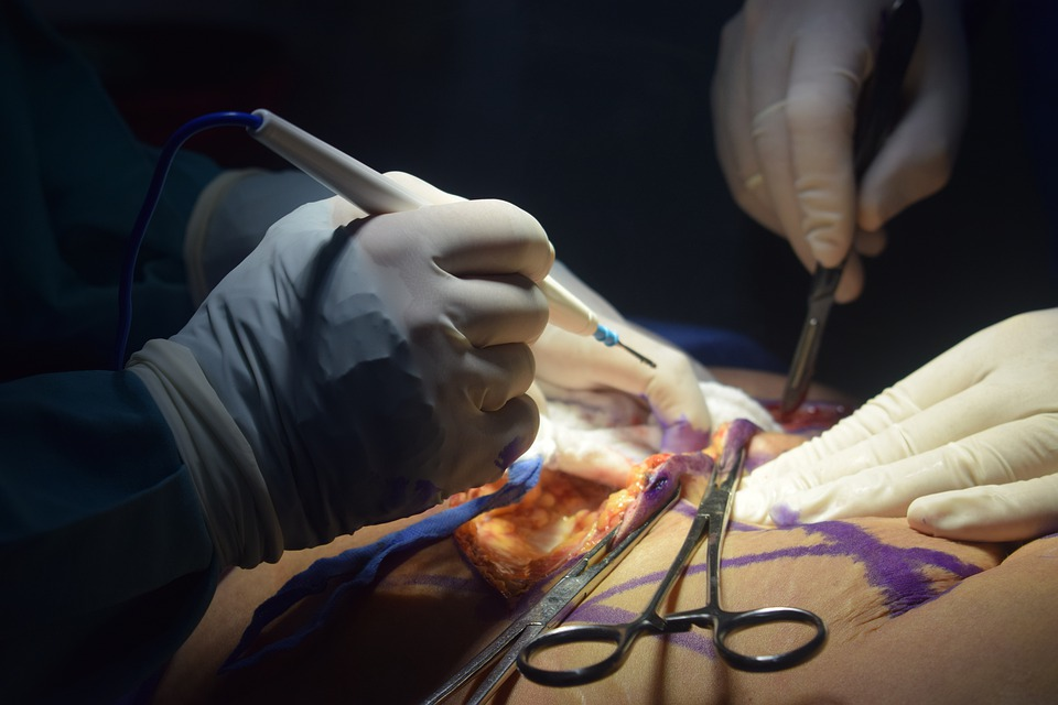 chirurgie plastique